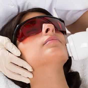 21 Лазерная эпиляция на лице