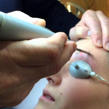 3 Лазерная эпиляция на лице. Салон На Речной в Красногорске