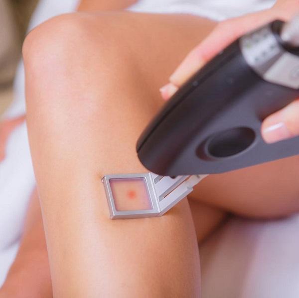 8 Лазерная эпиляция голени. Салон На Речной, Красногорск