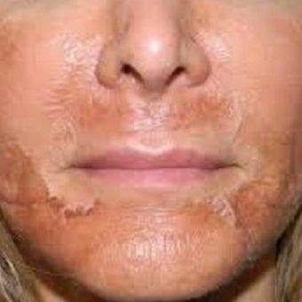 Шелушение кожи после срединного химического пилинга