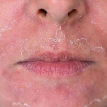 23 Шелушение кожи после химического пилинга ФЬюжн