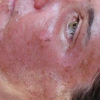 24 После пилинга ТСА на 4 день. Гиперемия кожи и шелушение.