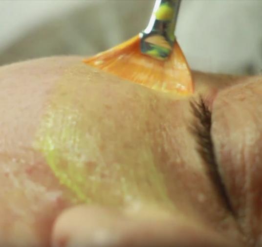 Желтый ретиноловый омолаживающий пилинг в салоне красоты На Речной в Красногорске