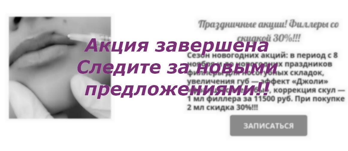 Анонс о завершении новогодней акции в салоне красоты На Речной в Красногорске, 20.02.2020, филлер для губ со скидкой