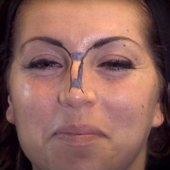 Разметка спинки носа карандашом с обозначением зон введения филлера, салон красоты На Речной в Красногорске