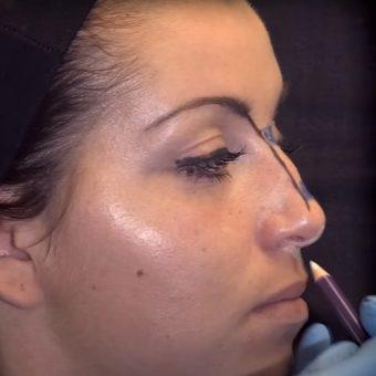 Разметка кончика носа перед инъекцией филлера, косметология салона На Речной в Красногорске