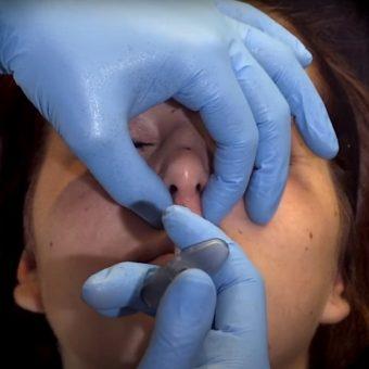 Инъекция филлера для поднятия кончика носа
