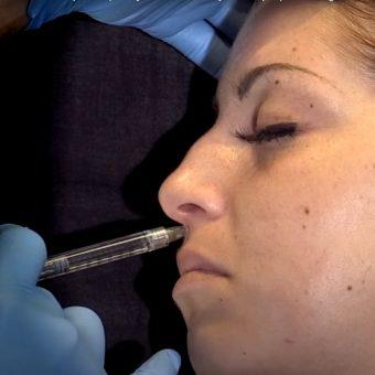 Инъекция филлера для поднятия кончика носа, фото в боковой проекции, салон красоты На Речной, Красногорск