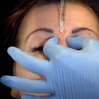 Коррекция филлером глубины переносицы при инъекционной ринопластике, салон На Речной, Красногорск