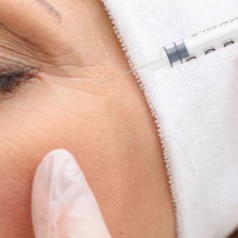 Инъекции ботокса против мимических морщин вокруг глаз, салон красоты На Речной в Красногорске