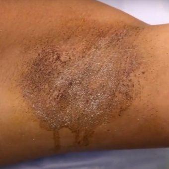 12 Лечение гипергидроза инъекциями ботокса. ход процедуры, салон красоты На Речной в Красногорске