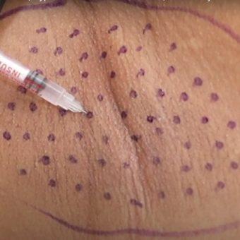 16 Лечение гипергидроза инъекциями ботокса. ход процедуры, салон красоты На Речной в Красногорске
